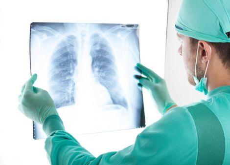 Собаки діагностують рак легень краще, ніж люди