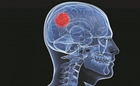 Генетика впливає на виживання при гліобластомі