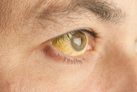 Причини пожовтіння білків очей