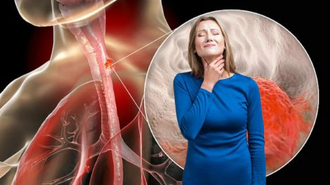 Рак стравоходу: 7 тривожних симптомів