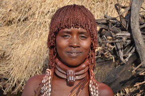 Хвороба вбиває ефіопців