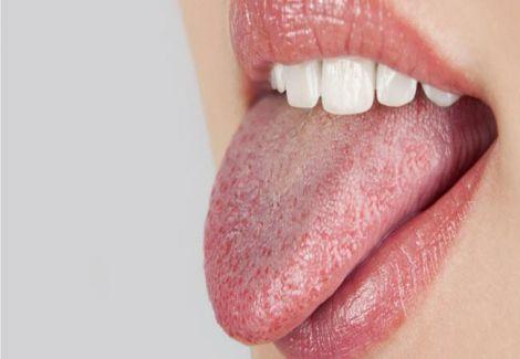 Ліки, які викливають сухість в роті