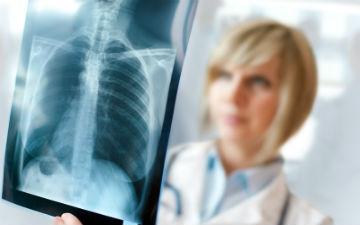 Рак легенів: симптоми