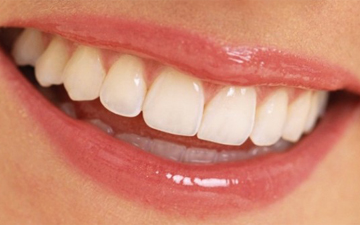 вирівняти зуби тепер можна без брекетів