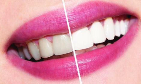 Відбілення зубів