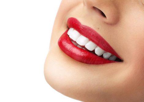 Продукти, які відбілять ваші зуби