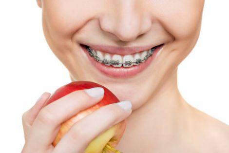 Відновлення зубів взимку