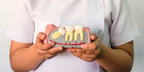 Зубы мудрости: почему их нужно удалять?