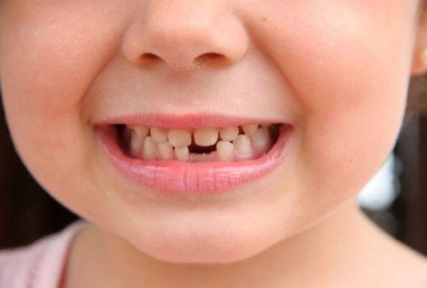 Догляд за першими зубами