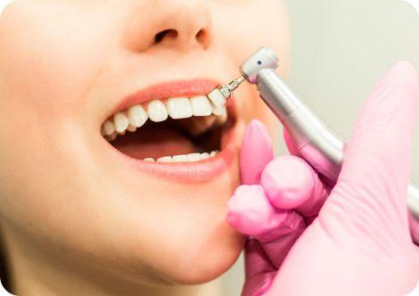 Яка їжа може замінити зубну пасту?