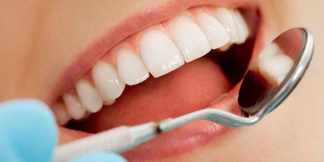 Чистка зубів