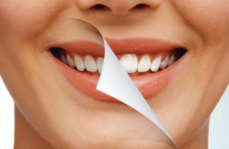 Відбілювання зубів продуктами харчування