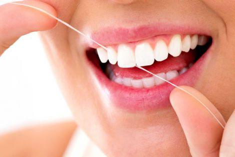 Як позбутись зубного нальоту?