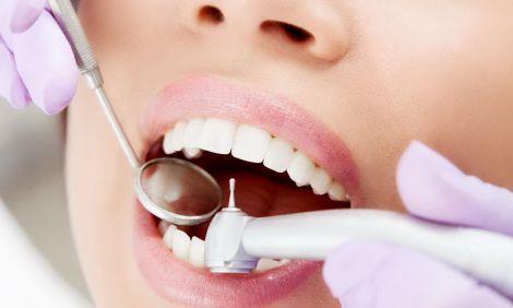 Вітаміни для міцних зубів