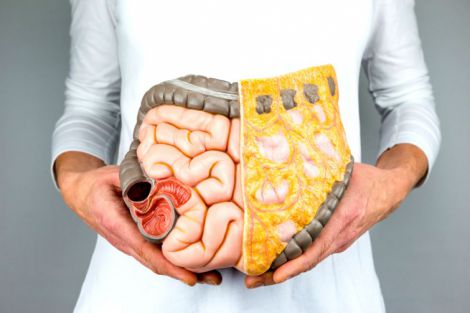 Лікування поліпів у кишечнику