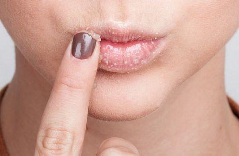 Як зробити пілінг губ?