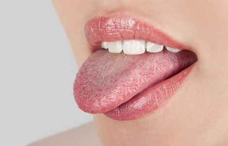 Жовтизна язика
