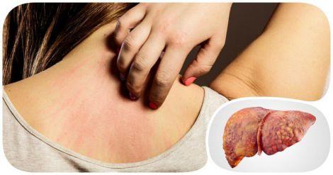 Неприємне відчуття на шкірі назвали симптомом жирової хвороби печінки