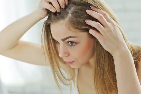 Методи профілактики випадіння волосся