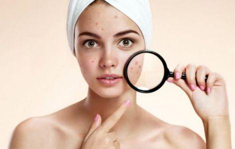 5 масок, які допоможуть позбавитись від прищів