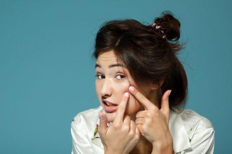Як швидко позбутись від прищів на обличчі?