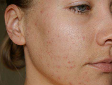 Фактори, які сприяють виникненню прищів на обличчі