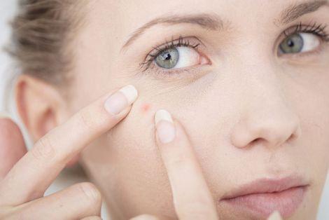 Прищі на обличчі: причини виникнення