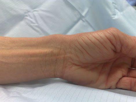 Ген, який відповідає за рідкісне захворювання кісток