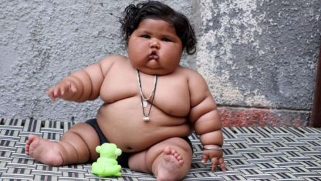 Індійська дівчинка, яка важить 25 кілограмів у 10 місяців