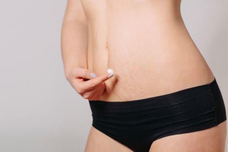 Поради, які допоможуть позбутись розтяжок на тілі