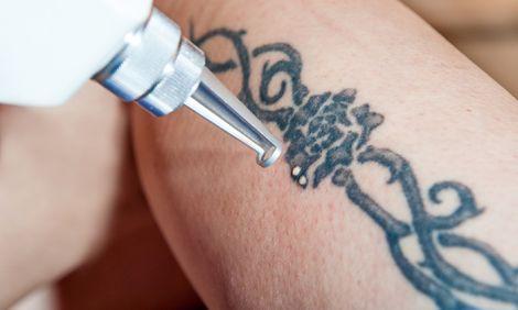 Чому важко позбуватись від татуювань?
