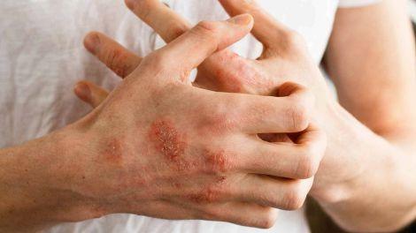 Боротьба зі шкірними хворобами