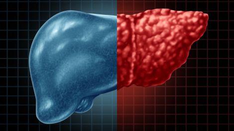 Виявлено непомітні ознаки жирової хвороби печінки