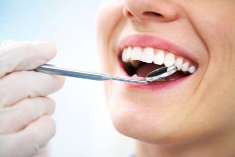 Міфи про карієс зубів