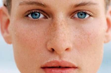Пігментні плями на обличчі: як вивести?