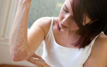 Ще кілька способів лікувати псоріаз