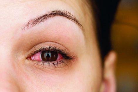 Здорові очі та кишечник