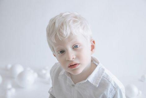 Альбінізм може передаватись генетично