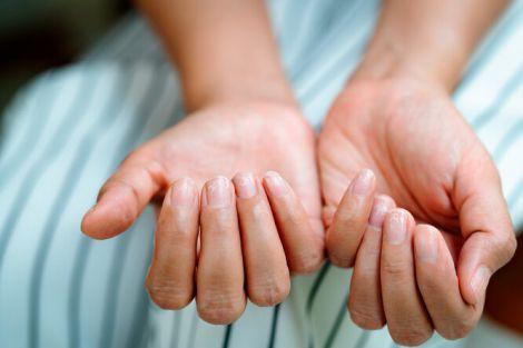 Меланому можна розпізнати за станом нігтів