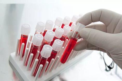 Аналіз крові на аутизм