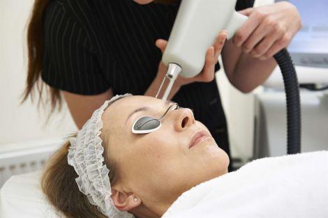 Лазер у косметології