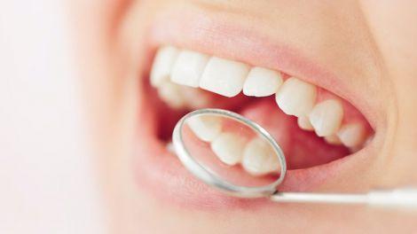 Хворі зуби впливають на зовнішній вигляд