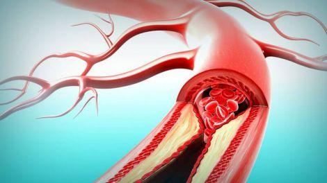 Основні причини утворення тромбів у судинах