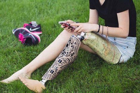 Через нестерпний біль дівчина відрізала ногу