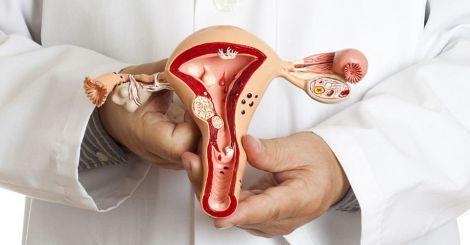 Ендометріоз частіше діагностують у дівчат-підлітків