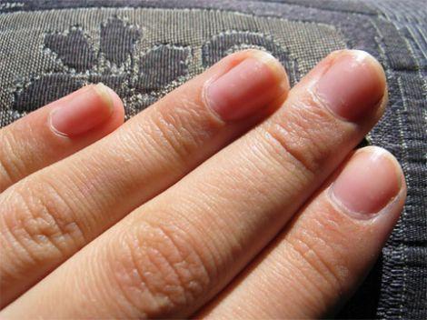 Розшарування нігтів