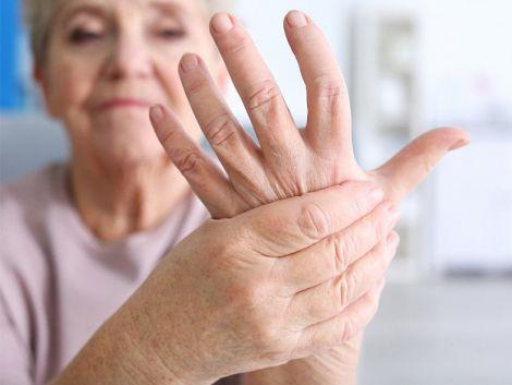 Симптоми розвитку артриту