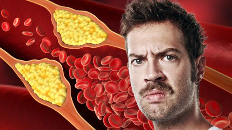 На високий рівень холестерину в крові вкаже незвичайний симптом в очах
