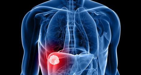Терапія від раку печінки