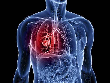 Ген, який вилікує рак легень
